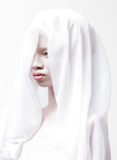 Modelo-albino-2