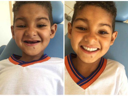 Dentista realiza sonho de garoto em ter um sorriso com dentes