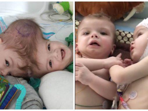 Bebês que nasceram unidos pela cabeça interagem lado a lado pela primeira vez