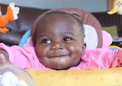 Cirurgia faz remoção de duas de quatro pernas de bebê