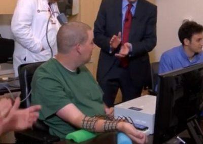Implante de eletrodo no cérebro permite que tetraplégico mova o braço