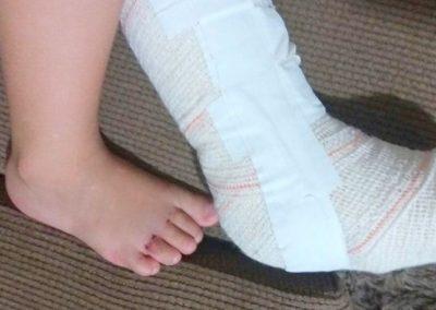 Menino quebra pé direito e hospital engessa o esquerdo