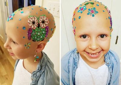 """Garota diagnosticada com alopecia ganha auto-estima com """"cabelos"""" diferentes"""