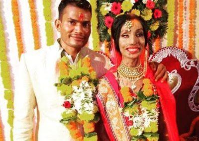 Mulher se casa após ser atacada com ácido e passar por 17 cirurgias
