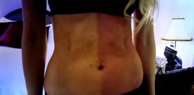 Após absorver irmã gêmea no útero, mulher tem dois tons de pele e dois DNAs