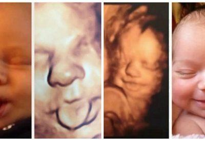 Obstetra faz sucesso ao comparar ultrassom 3D e fotos de bebês após nascimento