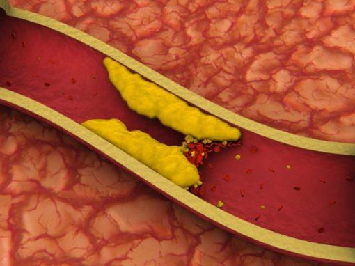 Cientistas testam vacina contra colesterol