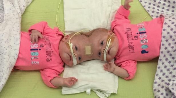 Facebook/Delaney Twins