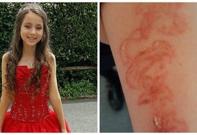 Após reação, tatuagem de henna pode deixar pele de garota marcada para sempre