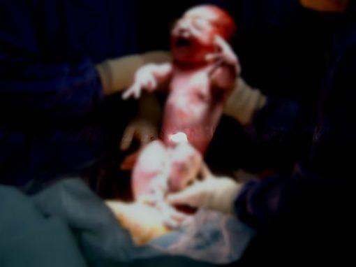 Médica grávida sofre aborto espontâneo enquanto fazia cesárea em paciente