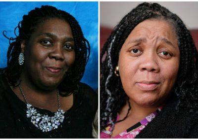 Remédio contra câncer faz mulher negra perder cor da pele