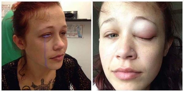 Após tatuagem no olho, modelo perde parte da visão