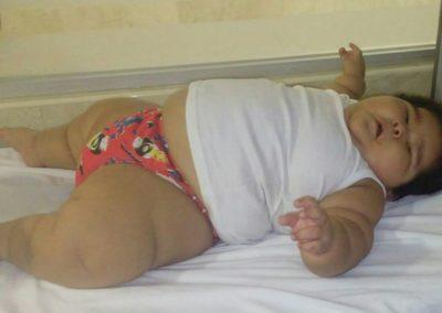 Bebê engorda 30kg em apenas 10 meses e pais buscam tratamento