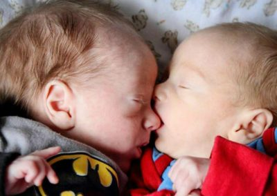Em gravidez de risco, gêmeos se salvam de morte por ficarem abraçados