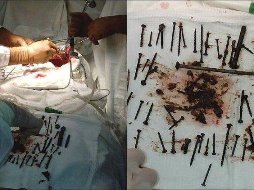 Médicos retiram 152 objetos de metal de estômago de idosa