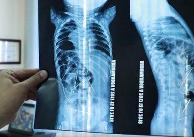 Médicos removem 13 de 16 agulhas de corpo de bebê