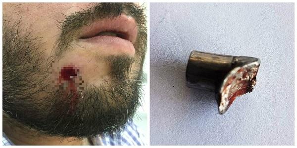 Homem baleado no rosto retira projétil com as mãos