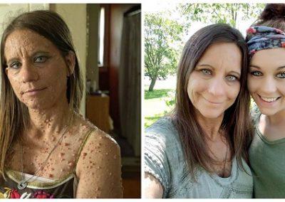 Mulher de 45 anos passa por cirurgia para retirar 1 mil tumores do rosto