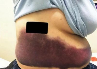 Mulher fratura costela após tossir compulsivamente