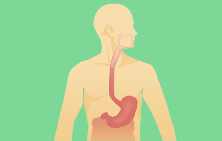 Acalásia: uma doença silenciosa e pouco conhecida