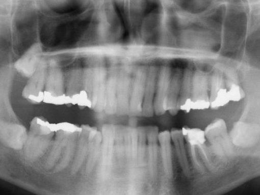 Aplicativo brasileiro ajuda dentistas a ler raios x