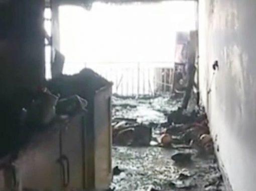 Garota perde mãos para salvar pai de casa em chamas