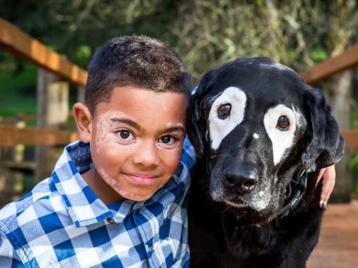 Vitiligo une garoto e cachorro com mesma condição