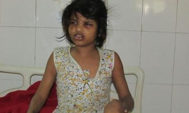 Garota achada na floresta é deficiente e pode ter sido abandonada pela família