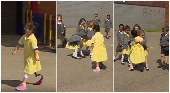 Garota mostra nova prótese na escola e reação dos colegas é encantadora