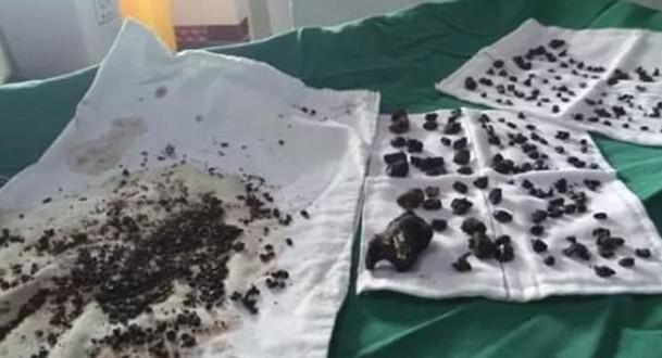 Mulher tem mais de 200 pedras removidas do seu corpo por médicos