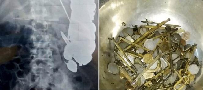 Cirurgiões retiram 7 kgs de metal de barriga de homem