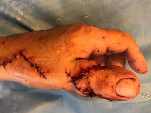 Para poder andar de moto, homem tem dedo do pé implantado em mão amputada