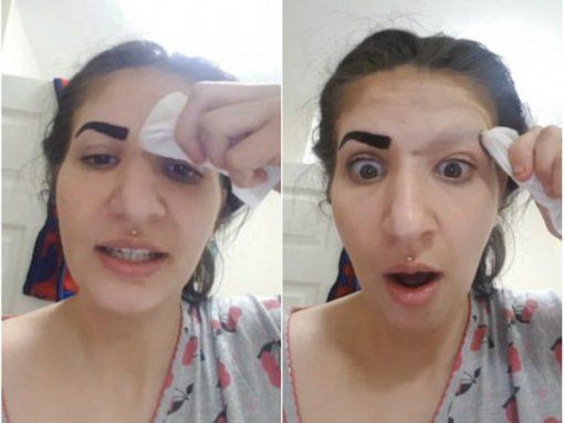 Garota perde a sobrancelha após usar produto que comprou na internet